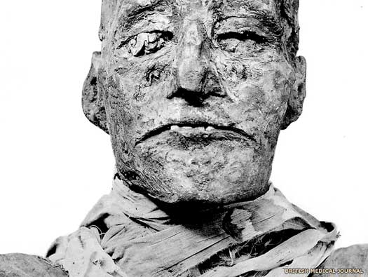 The mummy of Ramses III