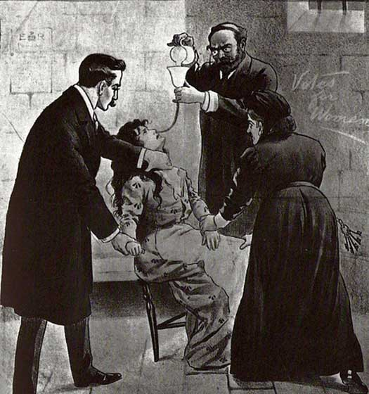 Forcefeeding a suffragette
